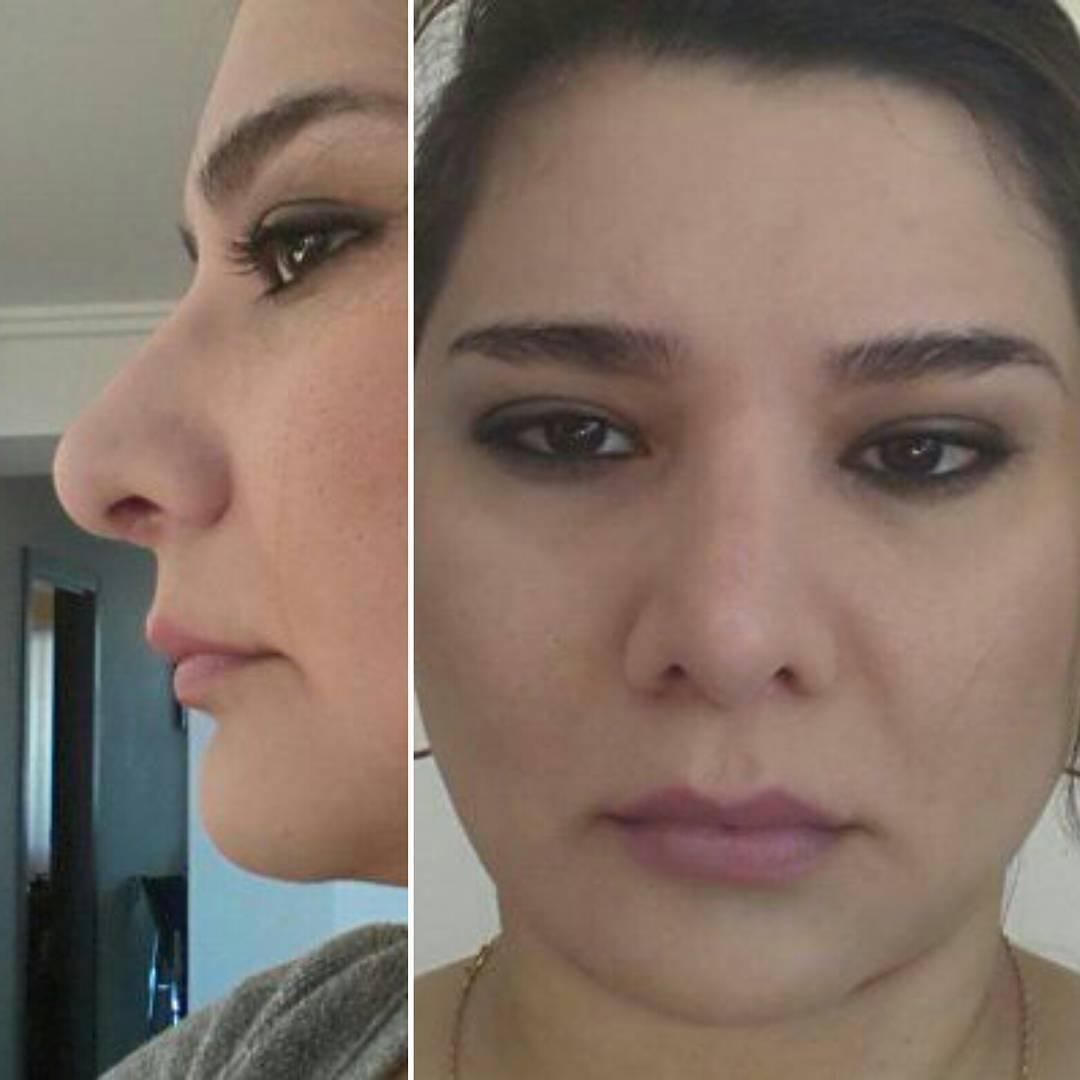 Yaptm burun ameliyattan sonra 5 ay geti dudak kalnlatrma sonucu